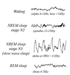 Image Result For Insomnia Definition